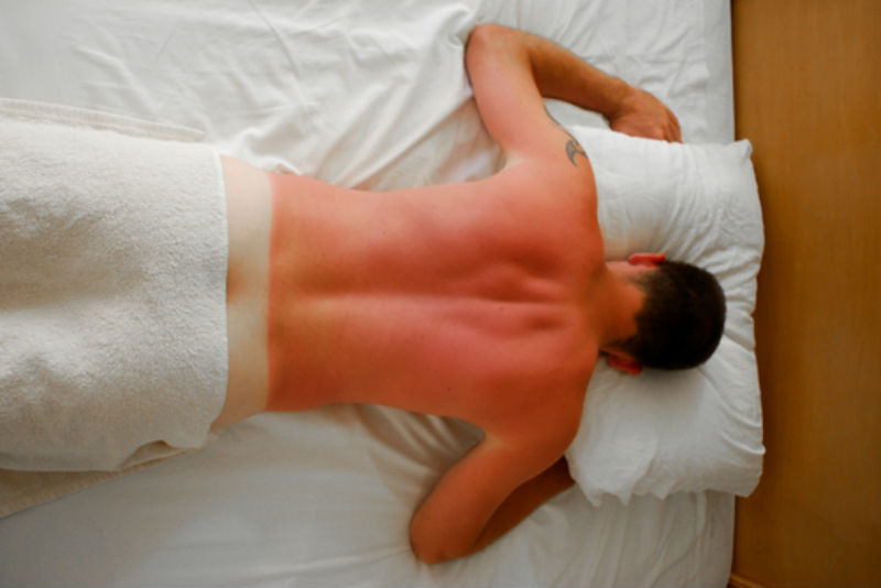 man with sunburn uv light skin damage on back