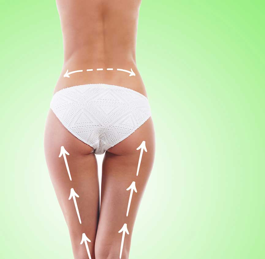 The Dangers of A Brazilian Butt Lift