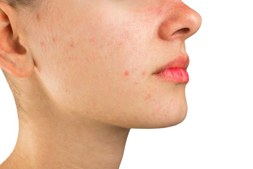 laser for acne scars, wrinkles and skin resurfacing