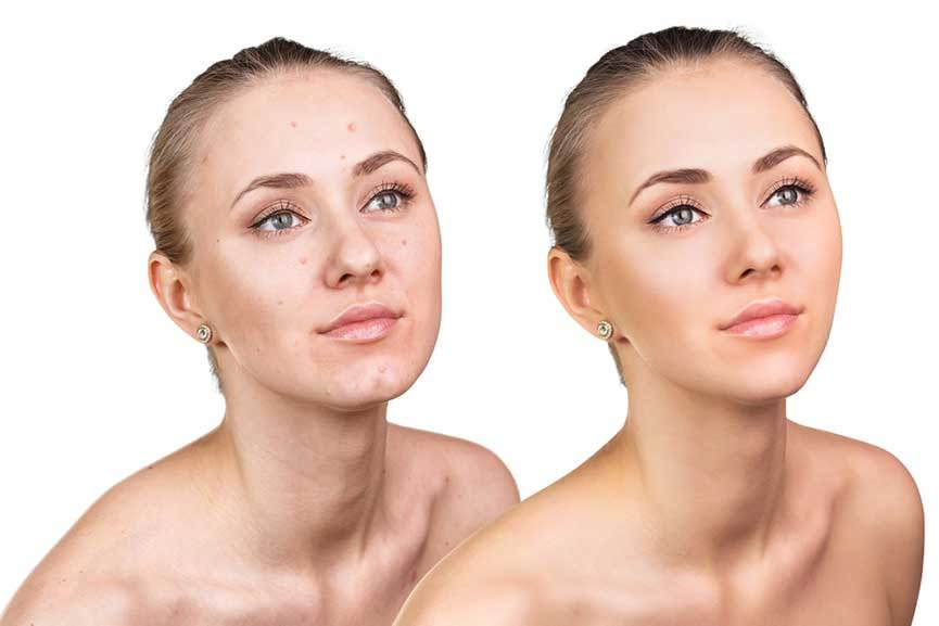 Best Acne Treatment for Oily Sensitive Skin