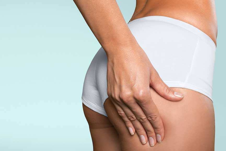 Buttock Augmentation – Fat Transfer vs Implants
