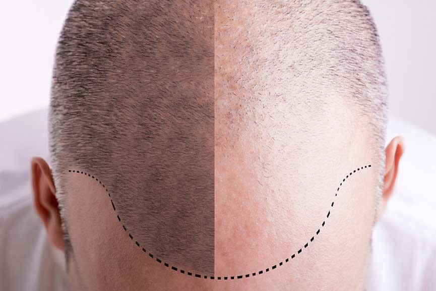 No Scar Hair Restoration With NeoGraft