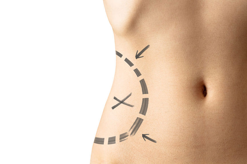 Liposuction Vs. CoolSculpting - What is the Difference?