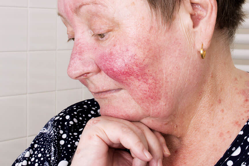 What is The Best Treatment for Rosacea