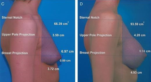 Breast Augmentation vs Lift - Upper Pole