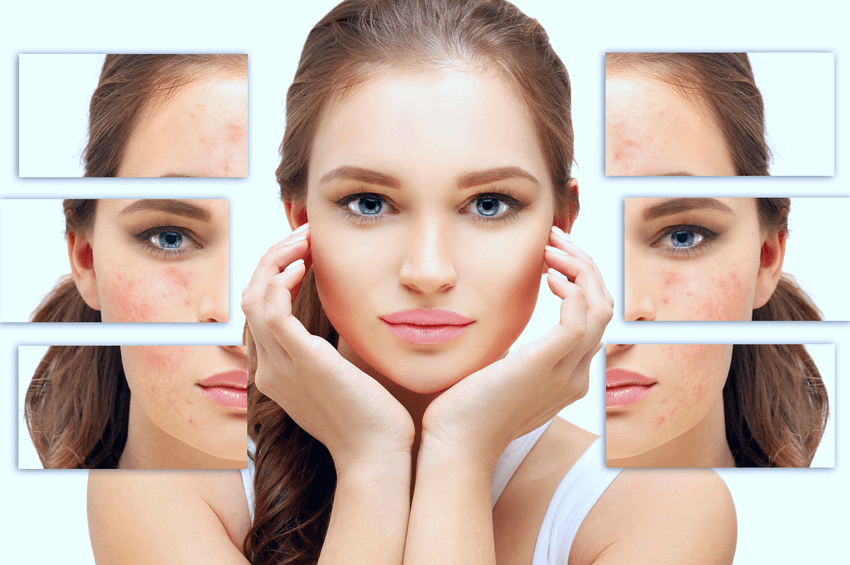 How to Eliminate Acne Scars and Skin Complexion Issues (1)