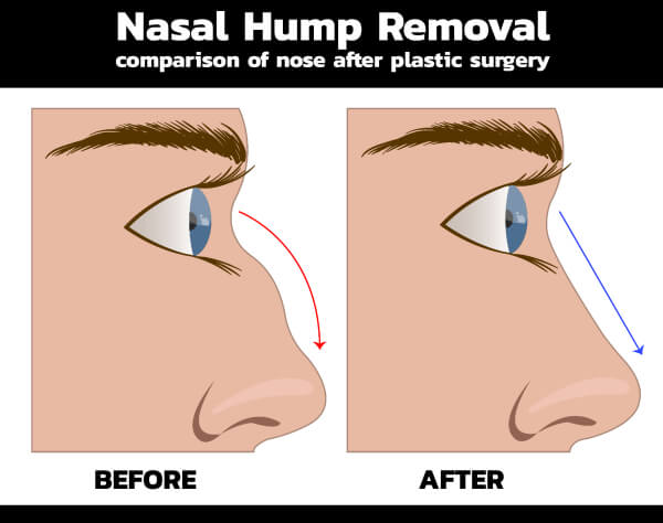 Male Rhinoplasty - Nasal Hump Removal