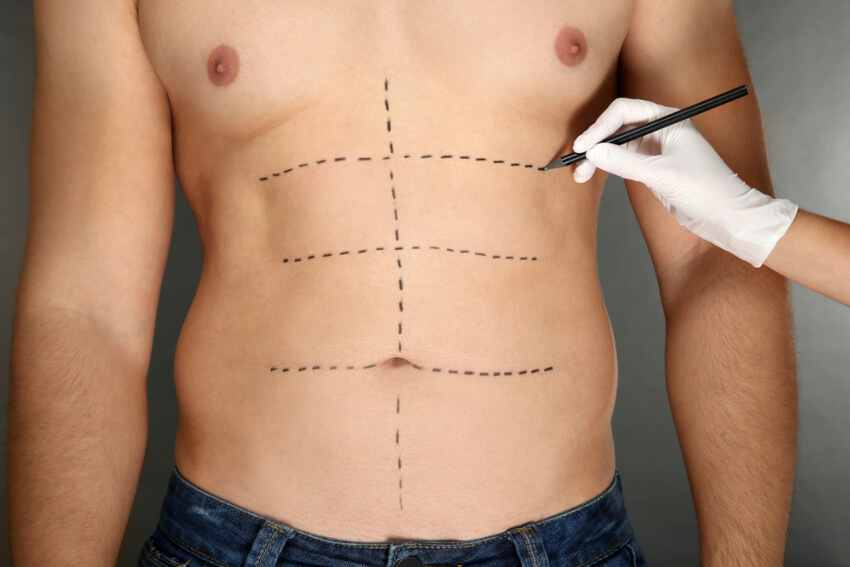 Comparing Liposuction and Liposculpture
